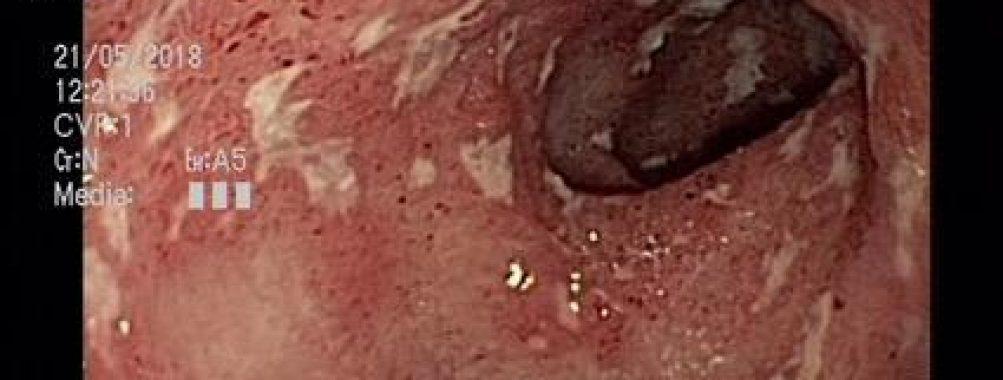 Escores endoscópicos em doença inflamatória: você utiliza de rotina?