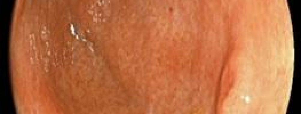 Você classificaria esta lesão como benigna ou maligna?