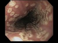 Esofagite herpética em paciente imunocompetente: um relato de caso