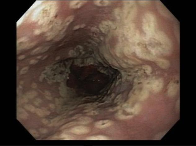 Imagem de esofagite herpética