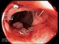 Aspectos endoscópicos da bolsa ileal