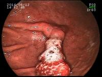 Pólipos hiperplásicos de estômago