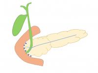 Você conhece a pancreatite paraduodenal (groove pancreatitis)?