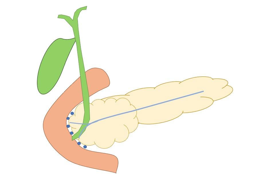 sulco pancreáticoduodenal