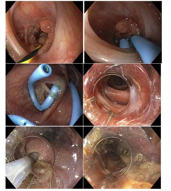 Fístula esofagopleural com formação de abscesso torácico no pós-operatório de diverticulectomia epifrênica videotoracoscópica.