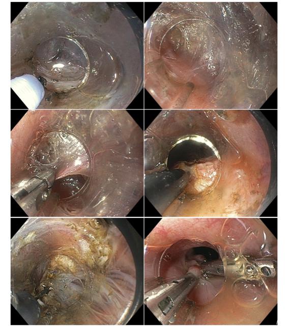 Etapas da tunelização submucosa e realização da miotomia da camada circular.