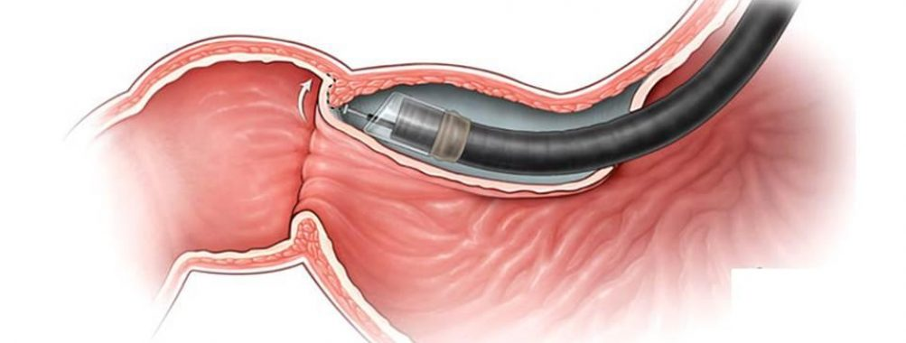 Artigo comentado pelo autor: Peroral endoscopic pyloromyotomy for gastroparesis: a sistematic review and meta-analysis